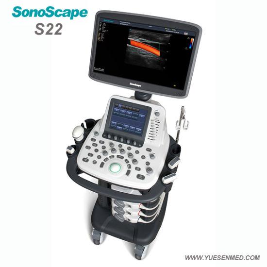 SonoScape S22