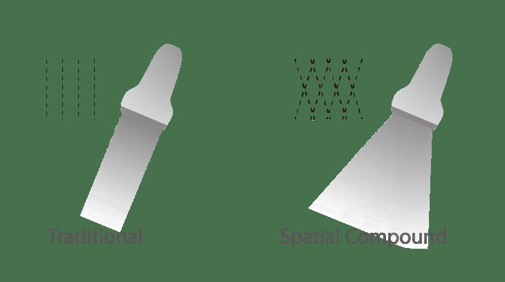 SonoScape P25